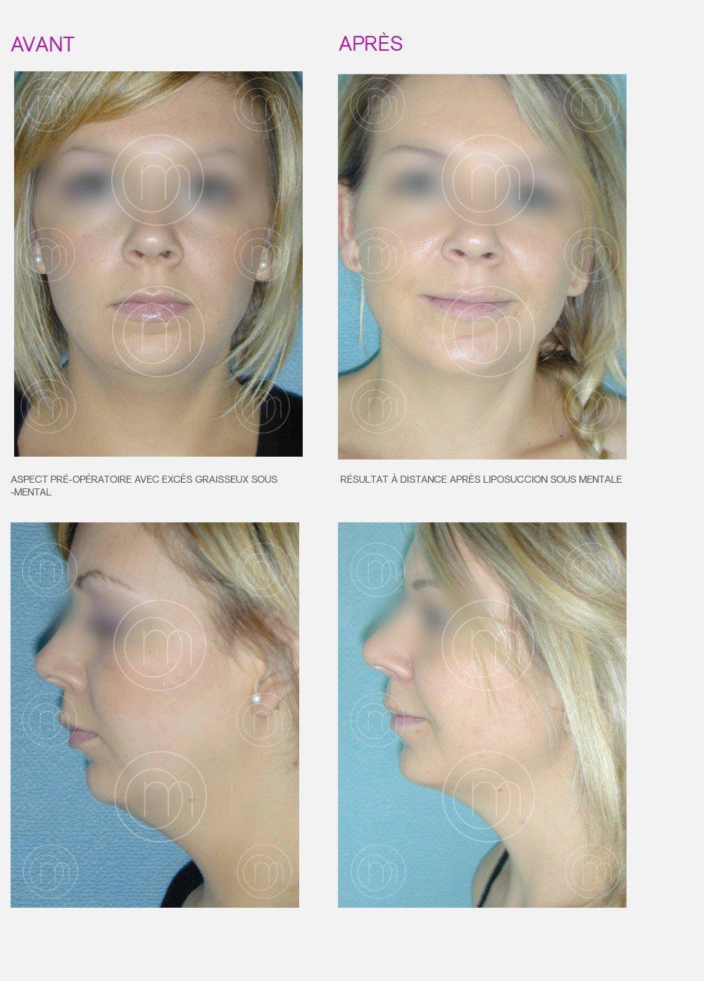 Liposuccion faciale avant et après