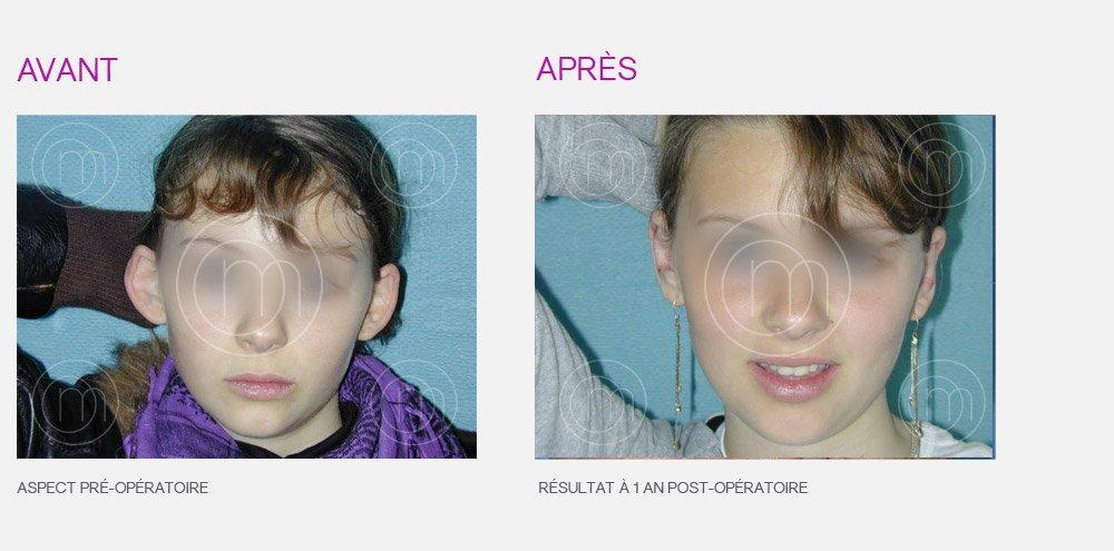 chirurgie décollement des oreilles