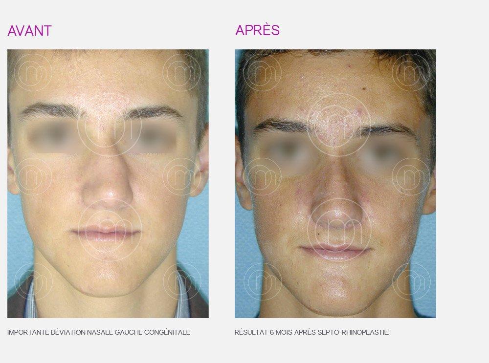 Rhinoplastie chirurgie esth tique du nez par le dr manise for Interieur du nez