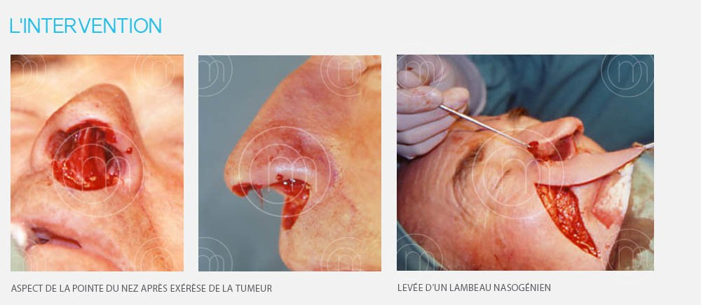 Photo chirurgie dermatologique carcinome